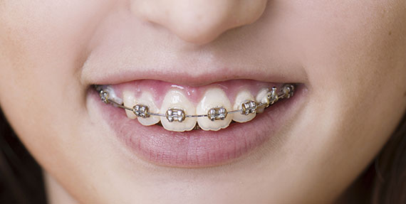Cleaning teeth in patients with fixed braces