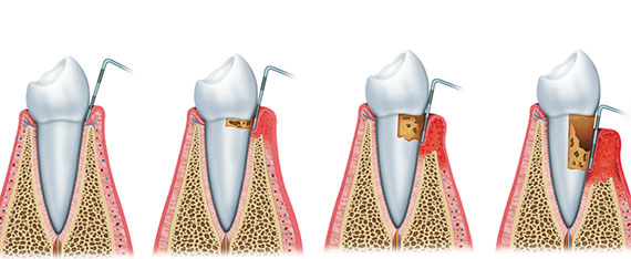 Scaling - treatment of patients with periodontitis