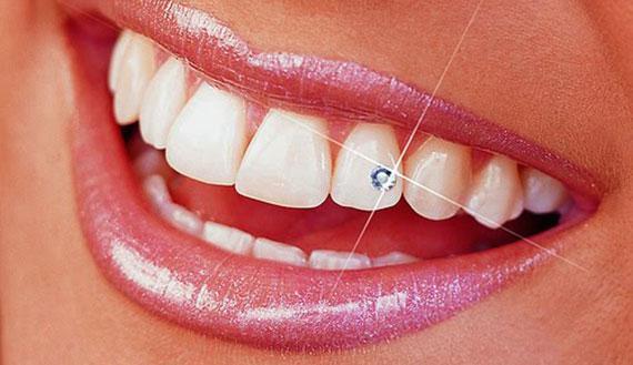 Zubní šperk