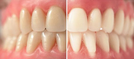 Zubní kamen a zánět dásní