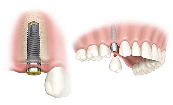 Náhrada jednoho zubu