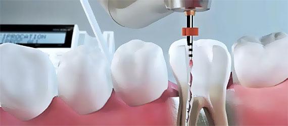 Endodoncie