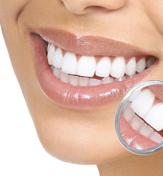 Částečné náhrady zubů