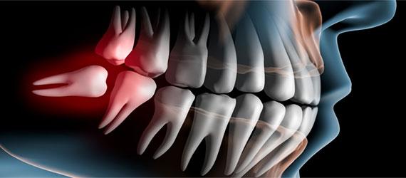 Stomatochirurgie