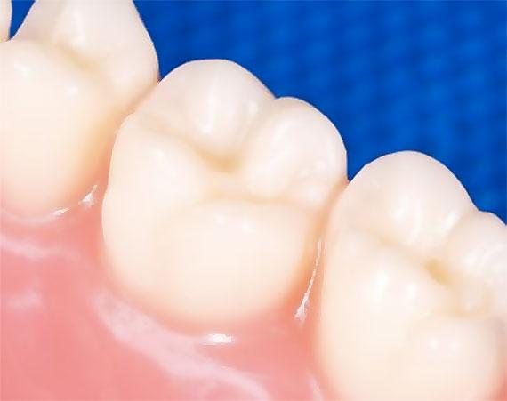 Zubní výplně